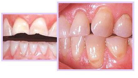 Tooth_Grinding.JPG